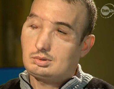 Pacjent po przeszczepie twarzy: ja nie mam marzeń