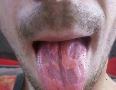 """Napoje energetyczne zaczęły """"wyżerać"""" mu język. Pokazał zdjęcie, by..."""