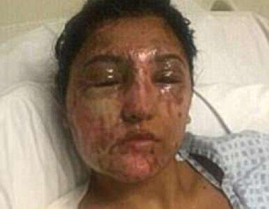 Została oblana kwasem w dniu swoich urodzin. Pokazała aktualne zdjęcie