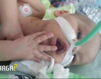 Uwaga! TVN: Fatalne skutki błędnej diagnozy. Dwulatek walczy o życie