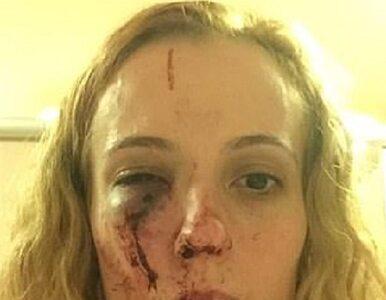 Rumunka brutalnie pobita, bo sprawcy myśleli, że jest Polką....