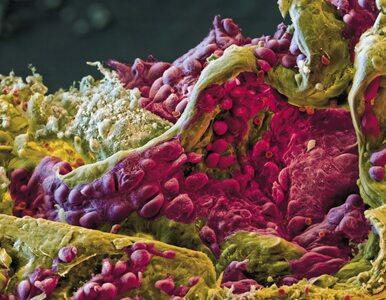 Rak płuca nie musi być wyrokiem